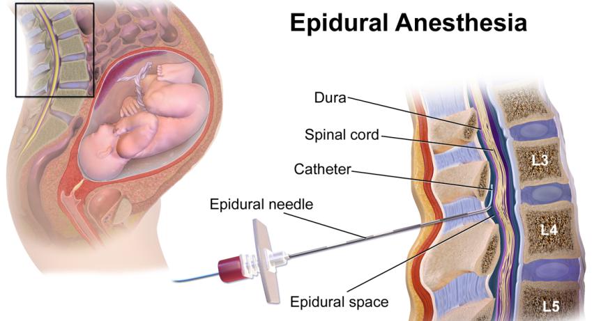 Epidural-Anesthesia
